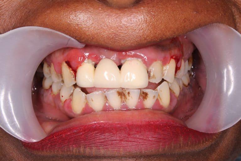 fogszuvasodás