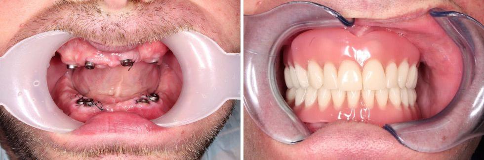 Stéges fogsor