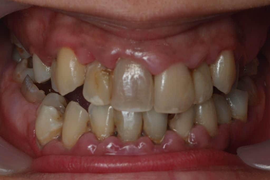 Hiányzó fogak