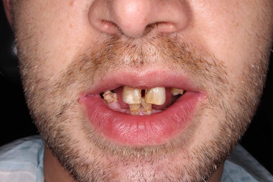 Csúnya fogak